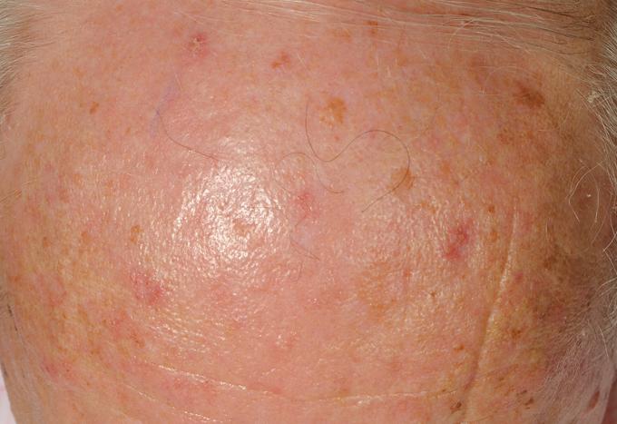 Bőrrák: jótékony vagy ártalmas napfény